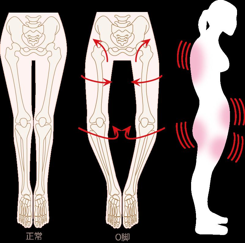 3D美脚コルギ O脚サンプル